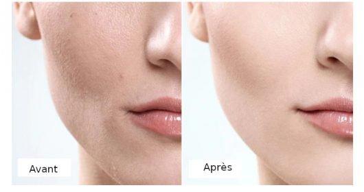 Avant Aprèsa avec base lissante maquillage Protect Skin Makeup
