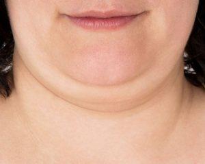Comment perdre son double menton sans chirurgie ?